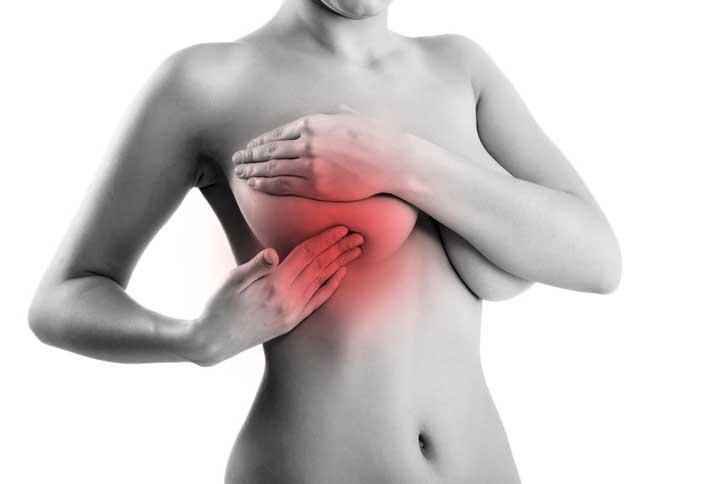 Фиброаденома молочной железы: лечение народными средствами