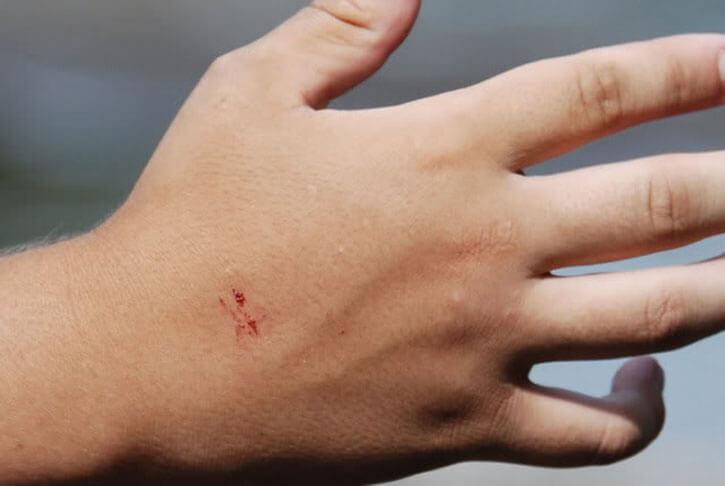 укус змеи на руке