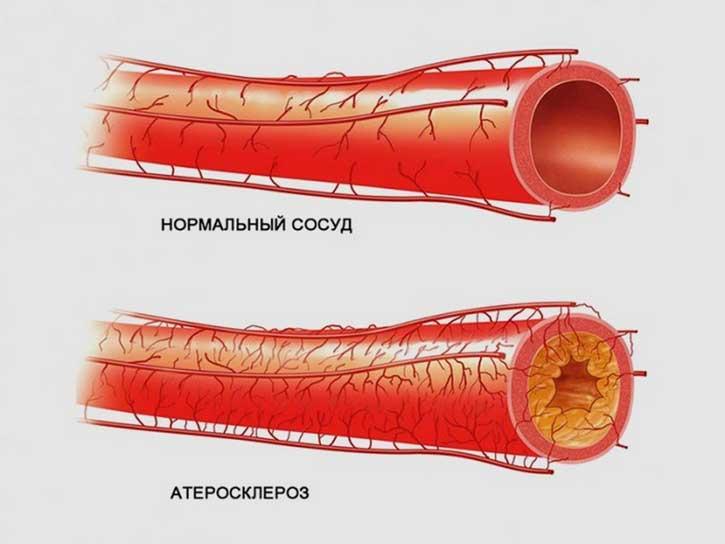сосуды холестерин